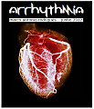 SET - Arrhythmia